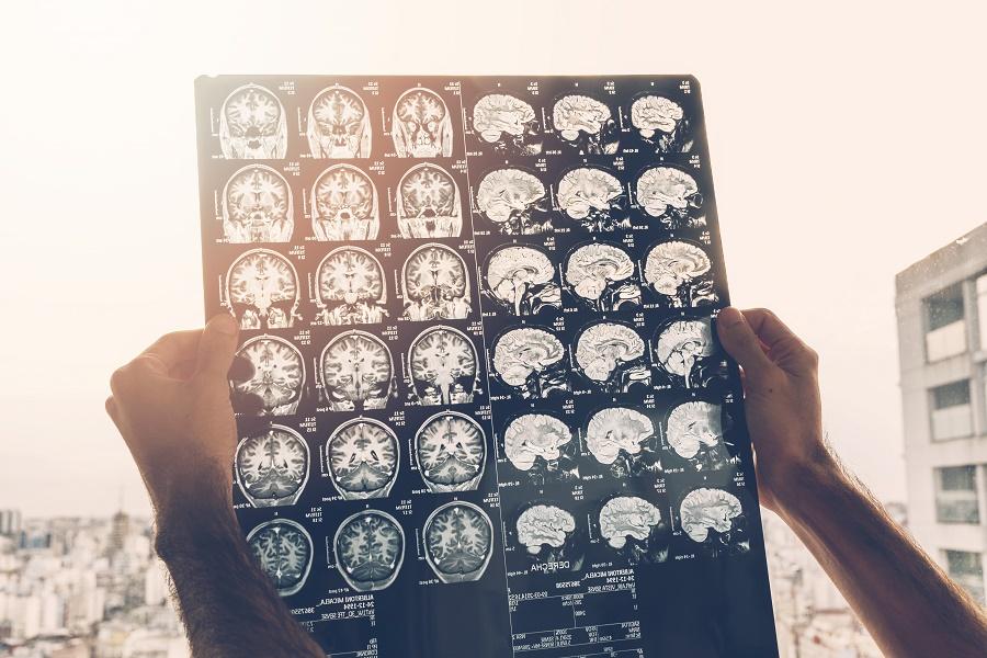Functional Neurological Disorder